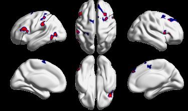 プログラミングが上達する人の脳活動パターンが明らかに!